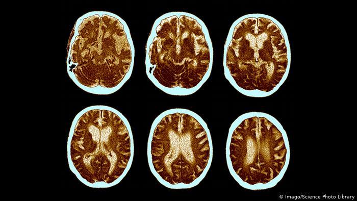 Një Pamje Në Skaner E Pjesëve Të Trurit Të Një Personi 74 Vjecar Me Alzheimer