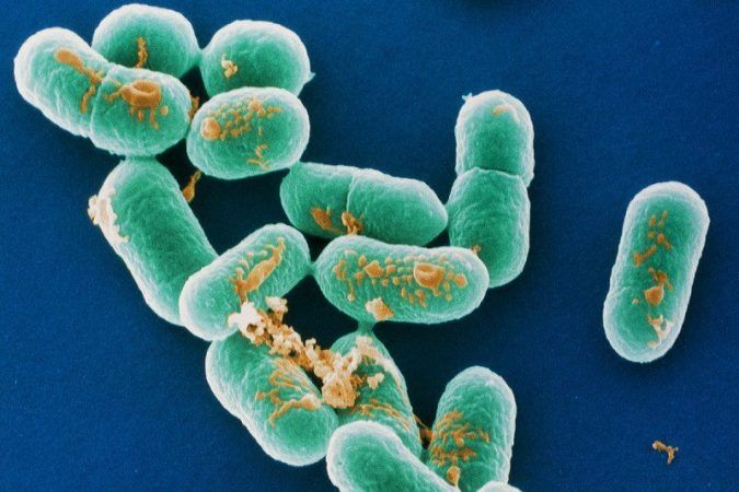 Who Listeria Outbreaks In South Africa The Largest In Record